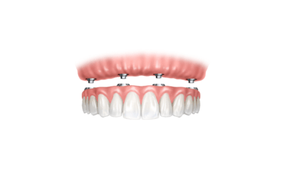 All-On-4 Implants – The latest in implant dentures