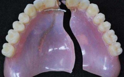 I've Damaged My Dentures. What Should I Do?