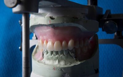 Do Dentures Contribute To A Dry Mouth?